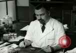 Image of Gall bladder pathology New York United States USA, 1948, second 39 stock footage video 65675020836