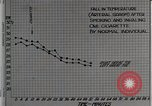 Image of decrease in circulation Detroit Michigan Henry Ford Hospital USA, 1936, second 24 stock footage video 65675023147