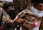 Image of victim of atomic explosion Hiroshima Japan, 1946, second 61 stock footage video 65675042174