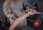 Image of operating an arm Hiroshima Japan, 1946, second 49 stock footage video 65675042175