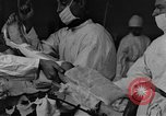 Image of operating a leg France, 1918, second 2 stock footage video 65675042404