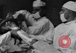 Image of operating a leg France, 1918, second 8 stock footage video 65675042404