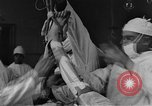 Image of operating a leg France, 1918, second 23 stock footage video 65675042404