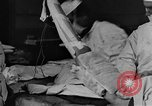 Image of operating a leg France, 1918, second 26 stock footage video 65675042404