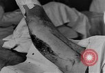 Image of operating a leg France, 1918, second 27 stock footage video 65675042404