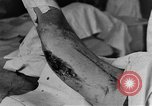 Image of operating a leg France, 1918, second 28 stock footage video 65675042404