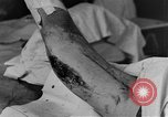 Image of operating a leg France, 1918, second 29 stock footage video 65675042404