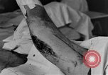 Image of operating a leg France, 1918, second 30 stock footage video 65675042404