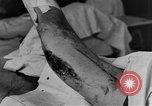 Image of operating a leg France, 1918, second 31 stock footage video 65675042404