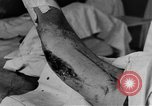 Image of operating a leg France, 1918, second 32 stock footage video 65675042404