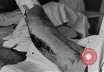 Image of operating a leg France, 1918, second 33 stock footage video 65675042404