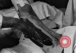 Image of operating a leg France, 1918, second 40 stock footage video 65675042404