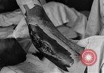 Image of operating a leg France, 1918, second 41 stock footage video 65675042404