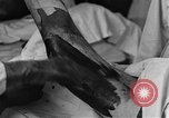 Image of operating a leg France, 1918, second 42 stock footage video 65675042404