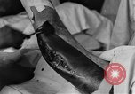 Image of operating a leg France, 1918, second 44 stock footage video 65675042404