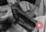 Image of operating a leg France, 1918, second 45 stock footage video 65675042404