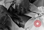 Image of operating a leg France, 1918, second 52 stock footage video 65675042404