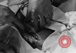 Image of operating a leg France, 1918, second 53 stock footage video 65675042404