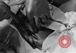 Image of operating a leg France, 1918, second 54 stock footage video 65675042404