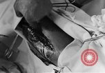 Image of operating a leg France, 1918, second 58 stock footage video 65675042404