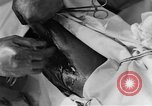 Image of operating a leg France, 1918, second 59 stock footage video 65675042404