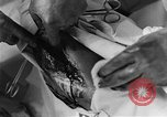 Image of operating a leg France, 1918, second 61 stock footage video 65675042404