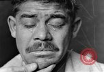 Image of eye injuries from gas attack during World War I France, 1918, second 11 stock footage video 65675042405