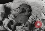 Image of war victims Europe, 1946, second 51 stock footage video 65675063149