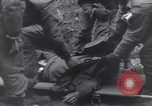 Image of wounded US Soldier tank crew World War 2 Wegscheid Germany, 1945, second 52 stock footage video 65675075892